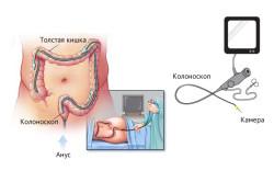 Схема колоноскопии