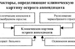 Факторы острого аппендицита