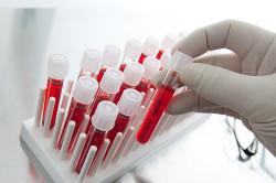 Анализ крови при зеленом поносе