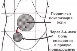 Признак Кохера-Волковича при аппендиците в острой форме