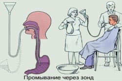 Промывание желудка через зонд